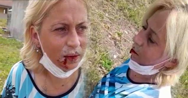Eskişehir'de 'sokak hayvanlarını' besleyen kadının çenesini kırdı!