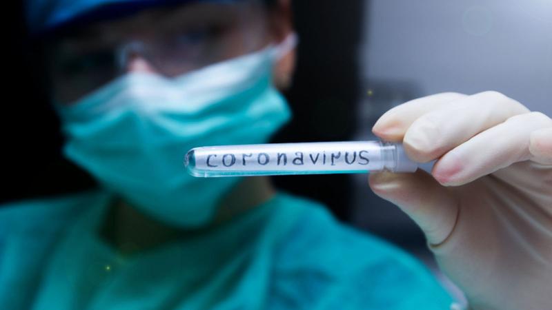 'Covid-19 testlerinde pozitiflik oranı yüzde 30'dan 10'a düştü'