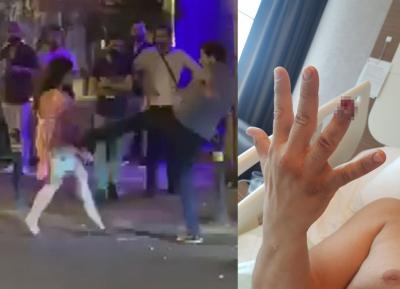Beyoğlu'nda güvenlikçinin parmağını ısırarak koparan kadın tutuklandı
