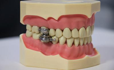 Bilim insanları, ağzın 2 mm'den fazla açılmasını önleyen 'diyet aleti' geliştirdi