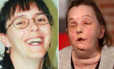 İki kez yüz nakli yapılan kadın: Her hafta daha iyi hissediyorum